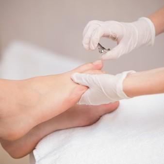 재발 잦은 손발톱 무좀, 효과적인 치료법과 관리법은?
