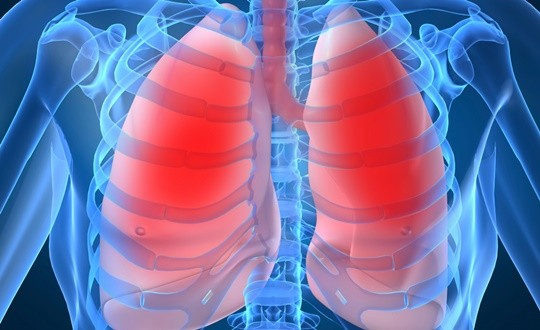 금연 후 더 심한 기침, 혹시 폐암?