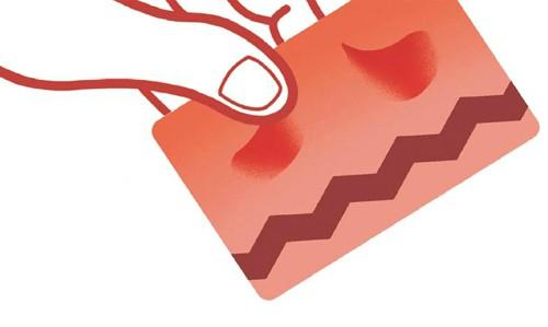 정부, 혈세로 카드수수료 인하 추진