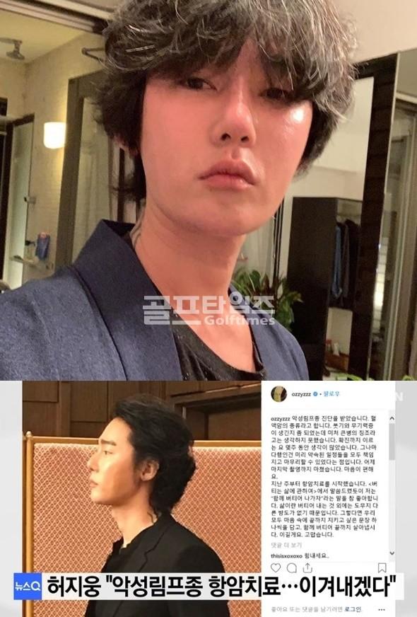 """'악성림프종' 허지웅 """"온 몸 부어올라…고비 넘겼다"""" 고통 따랐던 숱한 이상징후"""