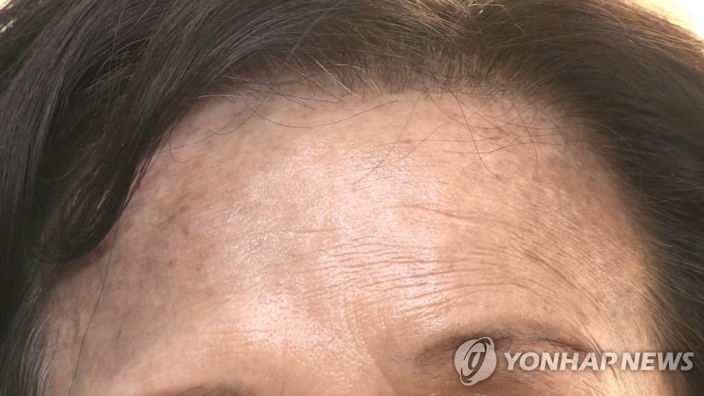정부, 염색 후 발생 '헤나 염모제' 피해 점검