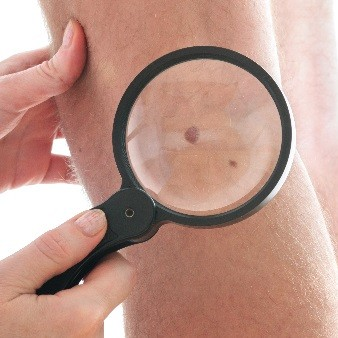 피부암 전암병변 '보웬병' 증상과 암이 될 확률은?