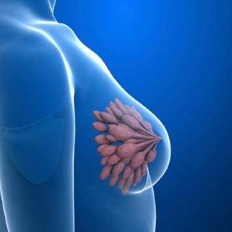 유방암 검진결과 '치밀유방'이면 조직검사가 필요..
