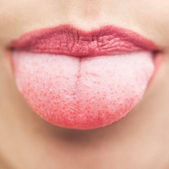 내 입에 설태? 유독 설태가 잘 생기는 이유는?