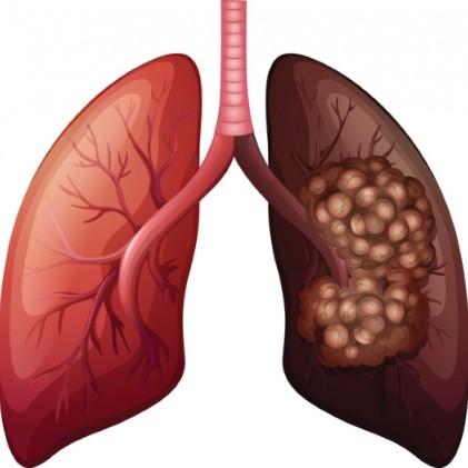 발견했더니 폐암 3기, 4기… 알아두어야 할 폐암 초기증상