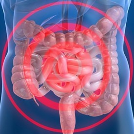 아스피린 등 비스테로이드성 소염진통제, 대장암에 효과