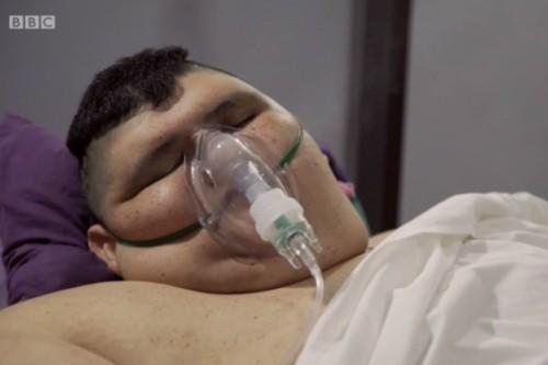 세계에서 가장 무거운 멕시코 남성, 석달 동안 345㎏ 감량…남은 몸무게는?